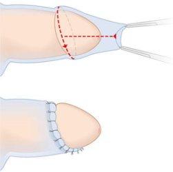 Эпителиальное склеивание головки пениса с внутренним листком крайней плоти