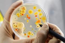 Хламидии в посеве спермы